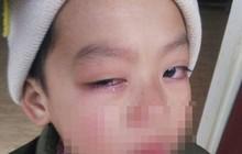 Tạm đình chỉ giáo viên bị tố lấy thước kẻ đánh vào mắt học sinh