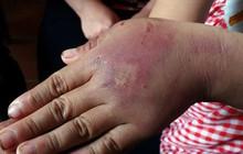 Phẫn nộ bố nghiện ma túy nhiều lần trói con gái 8 tuổi vào cột đánh đập dã man, thâm tím khắp người