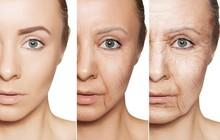 Những bí mật chưa từng được bật mí về hệ bạch huyết – chìa khóa cho làn da đẹp