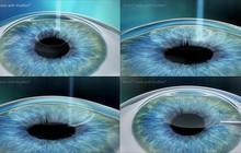 So sánh 3 phương pháp phẫu thuật khúc xạ phổ biến hiện nay: Lasik – Femto Lasik và Relex Smile
