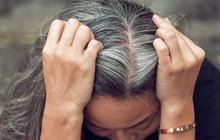 Một vài dấu hiệu khác thường ở mái tóc đang ngầm báo hiệu nhiều vấn đề sức khỏe tiềm ẩn