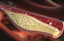 Người mắc bệnh máu nhiễm mỡ thường dễ gặp phải những biến chứng gì?