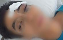 Trời nóng càm ràm nhiều, chồng bị vợ ném điện thoại vào mặt, chấn thương phải đi cấp cứu gấp