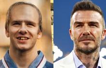 Quý ông lịch lãm nhất làng bóng đá từng được dự đoán sẽ trở thành ông già rụng răng, hói đầu vào năm 2020