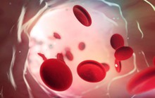 Đây là nhóm máu duy nhất có thể tự động kháng lại căn bệnh giết chết cả triệu người mỗi năm