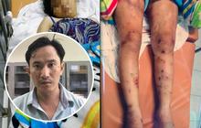 Khởi tố, bắt tạm giam 1 trong 2 kẻ chủ mưu vụ tra tấn cô gái mang thai 6 tháng khiến thai nhi tử vong ở Sài Gòn