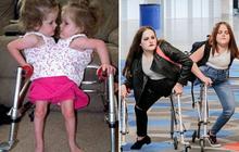 Cặp chị em từng dính liền bụng giờ đây hạnh phúc vì được tách đôi, có thể bước đi trên 1 chân của mình