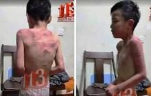 Thông tin bé trai bị bố dượng đánh đập ở Thanh Hóa là thất thiệt