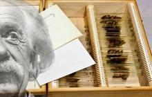 Câu chuyện về những thứ kỳ quái nhất từng được đem ra trưng bày trong bảo tàng: Não, thủ cấp và bộ phận sinh dục con người