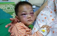 Hơn một năm, cuộc sống của bé trai 4 tuổi mồ côi, bị cha dượng đánh đập dã man khi đến thăm mẹ giờ ra sao?
