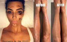 Từng gây sốc với làn da loang lổ vì bị bệnh mãn tính, Kim Kardashian tiết lộ cách khắc phục gây choáng bằng make-up?