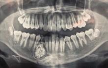 Ngỡ ngàng: Lấy gần 100 cái răng trong miệng thiếu niên 13 tuổi