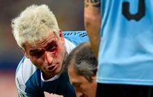 """Trọng tài """"bẻ còi"""" sau khi xem lại pha """"đánh yêu"""" khiến đối phương đầm đìa máu tại Copa America 2019"""