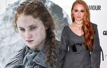 """""""Nữ hoàng Sansa"""" của Game Of Thrones mất kinh nguyệt suốt 1 năm vì ăn kiêng sau loạt chê bai từ công chúng"""
