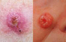 Bác sĩ da liễu Mỹ chỉ ra cách phân biệt 5 loại ung thư da phổ biến để kịp thời phòng tránh từ sớm