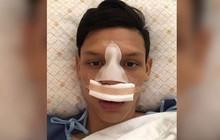 Sao Thái từng đấm Đình Trọng bị đối thủ thúc cùi chỏ làm vỡ mũi ngay trên sân