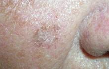 Ung thư da rất dễ xuất hiện ở những vùng này trên cơ thể, hãy nắm rõ để chủ động phòng tránh
