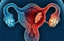 Có quá nhiều thứ con gái cần lưu ý để bảo vệ buồng trứng, tránh việc mất khả năng sinh sản