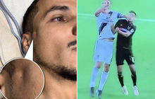 Kinh hoàng: Cầu thủ có đai đen Taekwondo tung đòn chỏ khiến đội bạn nứt xương sọ, lõm cả mặt