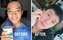 Quốc Trường tiết lộ chăm dưỡng cả tháng trời để chữa hói, và đây là những cách dưỡng giúp mọc tóc bạn có thể thử