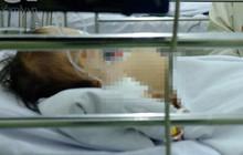 Thương tâm: Bình xăng cũ phát nổ trong đống rác, bé 28 tháng tuổi tử vong vì bỏng nặng