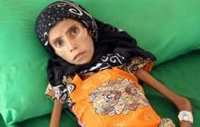 Bé gái 12 tuổi da bọc xương trở thành biểu tượng đầy ám ảnh của cuộc chiến tại Yemen