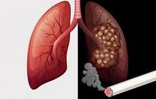 Cảnh báo: Gần 97% số ca ung thư phổi tại Việt Nam có hút thuốc lá