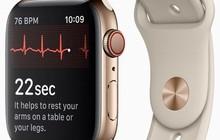 """Hết thứ để nâng cấp, """"Táo khuyết"""" sẽ trang bị cho Apple Watch camera đặt ở vị trí cực dị"""