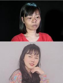"""Tai nạn trên đường đi lấy bằng tốt nghiệp khiến khuôn mặt biến dạng, cô gái quyết tâm """"lột xác"""" và thành quả đầy bất ngờ"""