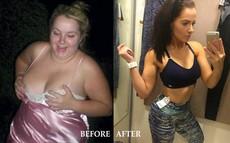 Sau chia tay, cô gái trẻ nhịn ăn để giảm cân đến nỗi suýt mất mạng