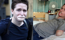 Tưởng chỉ bị cảm cúm thông thường, người đàn ông phải cắt bỏ chân tay và một phần gương mặt để giữ mạng sống