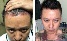 Tất cả những điều cần biết để phòng tránh căn bệnh quái ác mà ca sĩ Tuấn Hưng đang mắc phải