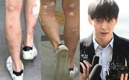 Giữa scandal ma tuý đá, đôi chân lở loét, chi chít mụn phồng rộp của Yoochun trở thành tiêu điểm nóng trên Weibo