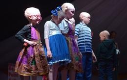 Vượt qua nỗi sợ hãi bị bắt cóc lấy cắp chân tay, các cô gái bạch tạng vẫn dũng cảm thi hoa hậu