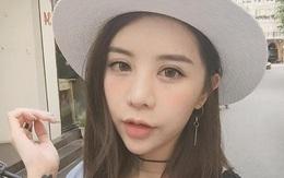"""Tiêm môi - """"Chìa khóa"""" để có ngay bờ môi tều sexy của rất nhiều con gái Việt"""