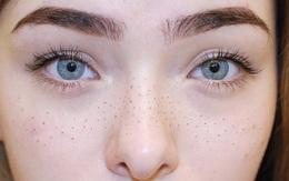Hết makeup tạo đốm tàn nhang giả, nay con gái còn xăm hẳn tàn nhang lên mặt