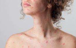 Cứ chủ quan với bệnh thủy đậu mà không ngờ các biến chứng của nó vô cùng nguy hiểm