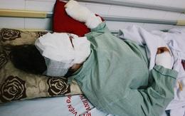 Từ vụ cô gái bị bỏng toàn bộ gương mặt: Vì sao bóng bay lại gây sát thương kinh hoàng đến vậy?
