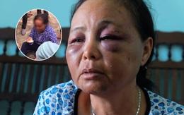 """Người phụ nữ bán tăm bị đánh oan vì tưởng bắt cóc trẻ em: """"Chỉ vì lời 1 cô gái mà họ lao vào đấm, đá túi bụi chúng tôi"""""""
