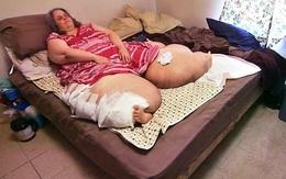 Người phụ nữ khổ sở vì đôi chân cột đình nặng 180kg