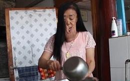 Người phụ nữ không may có bộ mặt chảy sệ như cao su