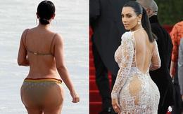 Đến bác sĩ thẩm mỹ của Kim cũng thừa nhận: Vòng 3 cô ấy xấu xí vì bơm quá to!