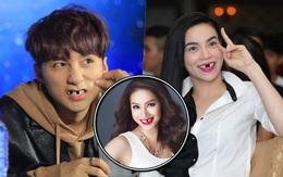 Trai xinh, gái đẹp showbiz Việt sẽ ra sao nếu một ngày bất ngờ… sún răng?