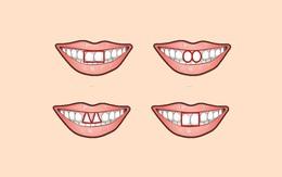 Xem hình dáng răng cửa, khám phá tính cách của con người