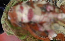 Em bé bị bố mẹ ruồng bỏ vì khuôn mặt dị dạng và làn da bong tróc như sinh vật ngoài hành tinh