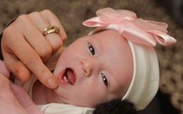 Bé gái sơ sinh mọc răng từ lúc còn đang nằm trong bụng mẹ