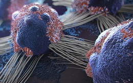 Thử nghiệm thành công vaccine chống ung thư - 12 người khỏi bệnh