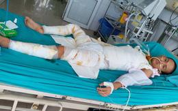 Hơn 20 ngày giành lại sự sống của chàng trai bị cháy ở xưởng bánh kẹo khiến 8 người tử vong