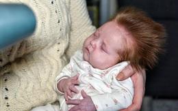 Bé gái mới chào đời đã có ngay mái tóc điện giật như Songoku