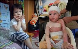Hành trình hồi phục kỳ diệu của bé gái 5 tuổi bị bỏng cồn do nhân viên nhà hàng sơ ý